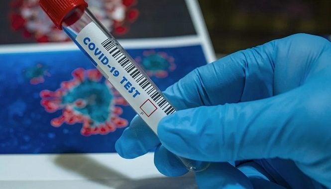 coronavirus,-25-maggio:-in-piemonte-meno-di-100-ricoveri-in-terapia-intensiva