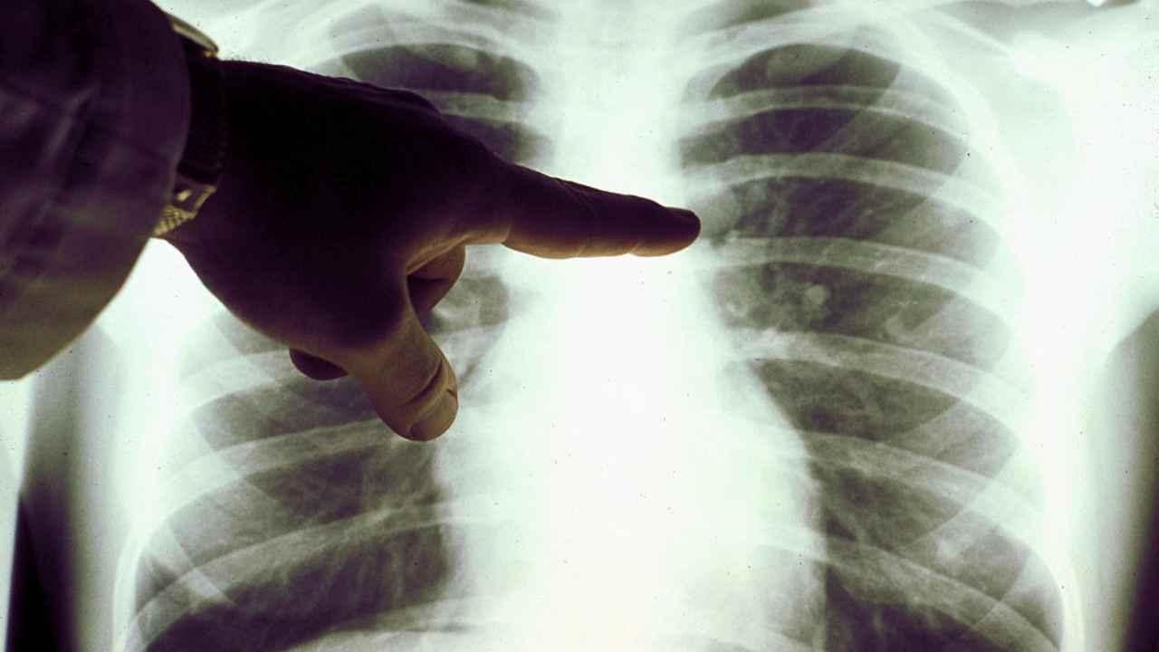 tumore-al-polmone,-l'intelligenza-artificiale-puo-anticipare-la-diagnosi